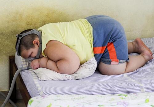 国外一男孩体重近160斤 小孩肥胖是难题